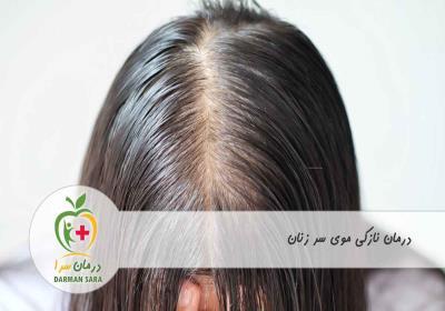 درمان نازکی موی سر زنان