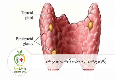 پرکاری پاراتیروئید چیست و چگونه درمان می شود