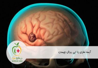 آبسه مغزی یا اپی دوال چیست