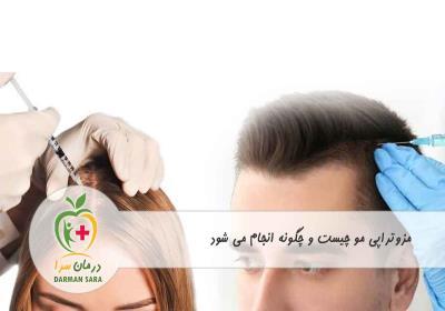 مزوتراپی مو چیست و روش انجام آن
