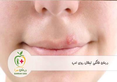 5 راه درمان خانگی تبخال