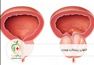 التهاب پروستات چیست
